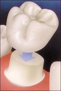 зубные коронки-Тастин